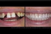 Before and after Dental Bridges