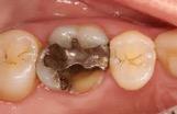 Broken tooth cusp