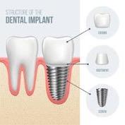Dental Implant structure diagram