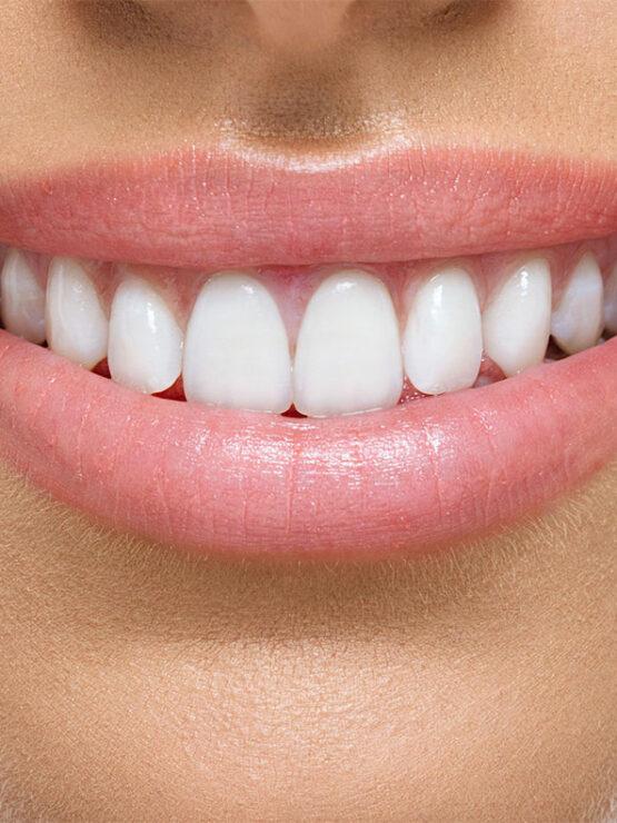 Smile Design   Bayside Family Dentistry