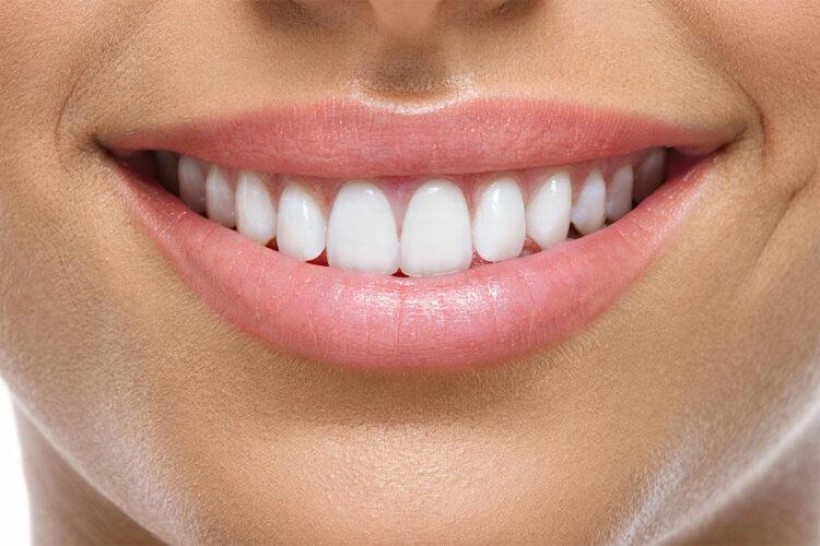 Smile Design | Bayside Family Dentistry