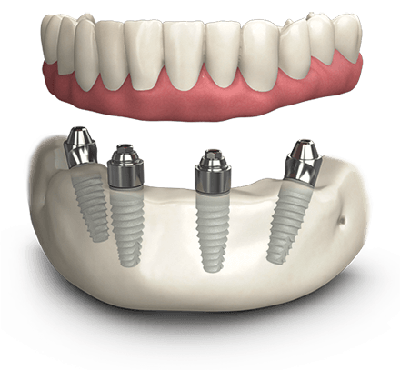 Dental Implants - All on 4