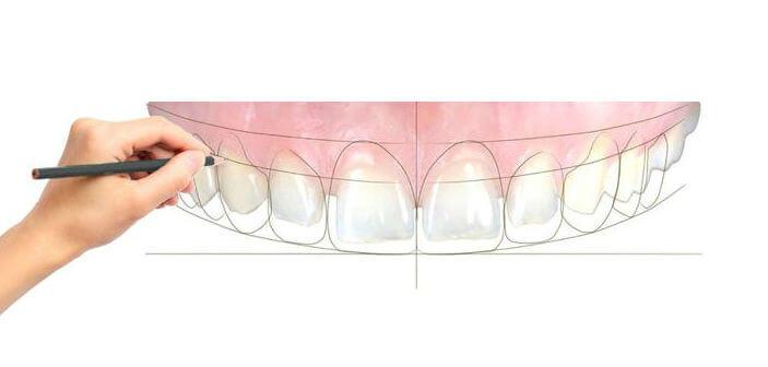 Bayside Family Dentistry Smile Design